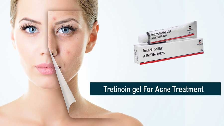 How does Tretinoin gel help in Acne Treatment?
